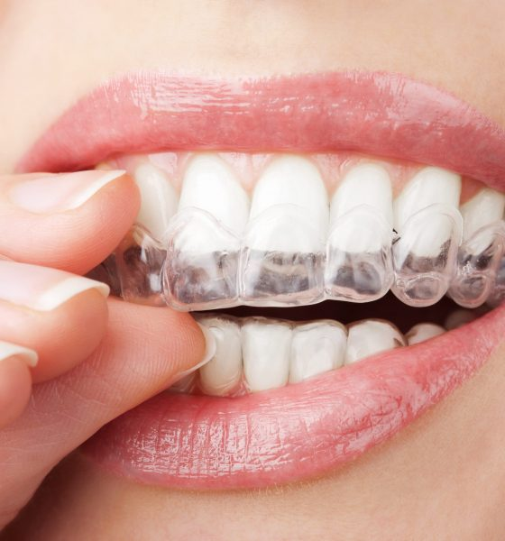The Benefits of Having Clear Braces