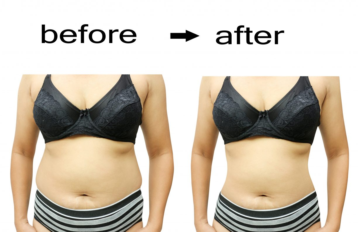 Questions About Liposuction